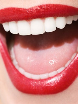 beauty-products-2014-09-best-teeth-whiteners